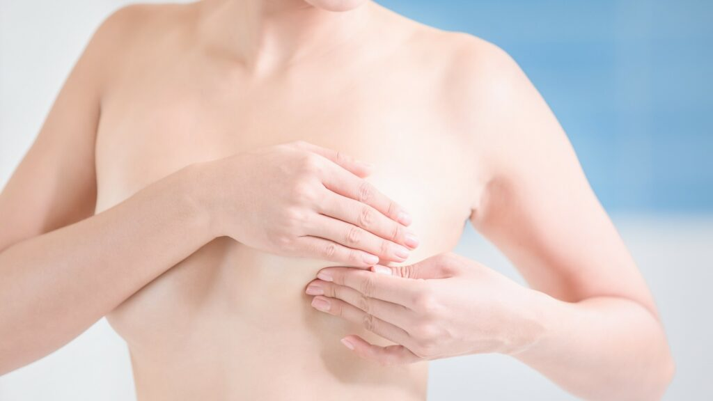 Afecta el cáncer de mama al pezón.