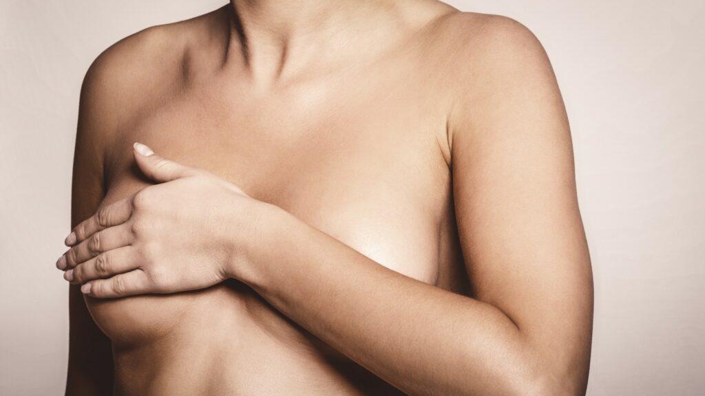 Así se manifiesta el cáncer de mama inflamatorio.