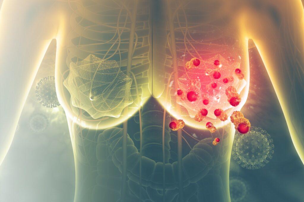 Existen distintos tipos de anomalías en los pechos además del cáncer de mama.
