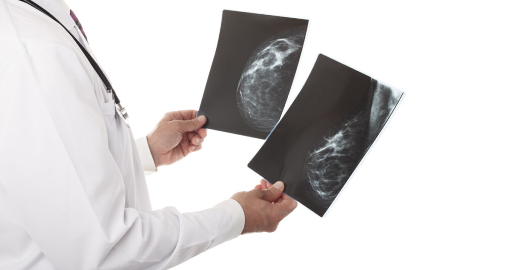 Un médico especialista interpreta los resultados de la mastografía.