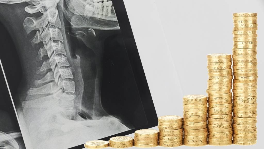 ahorro impresión de placas radiológicas pacs