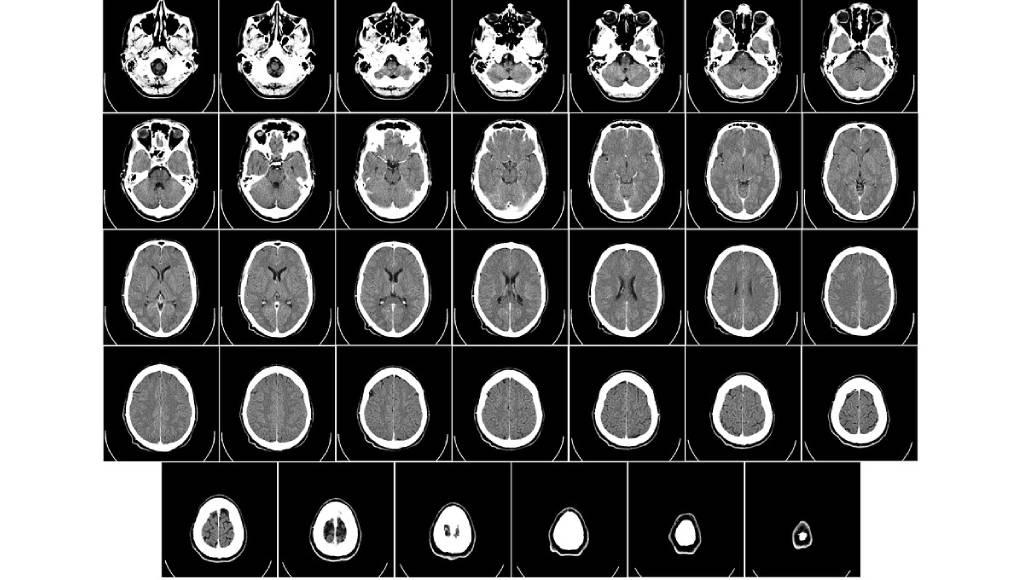 tomografia tecnicas de manipulacion de imagenes